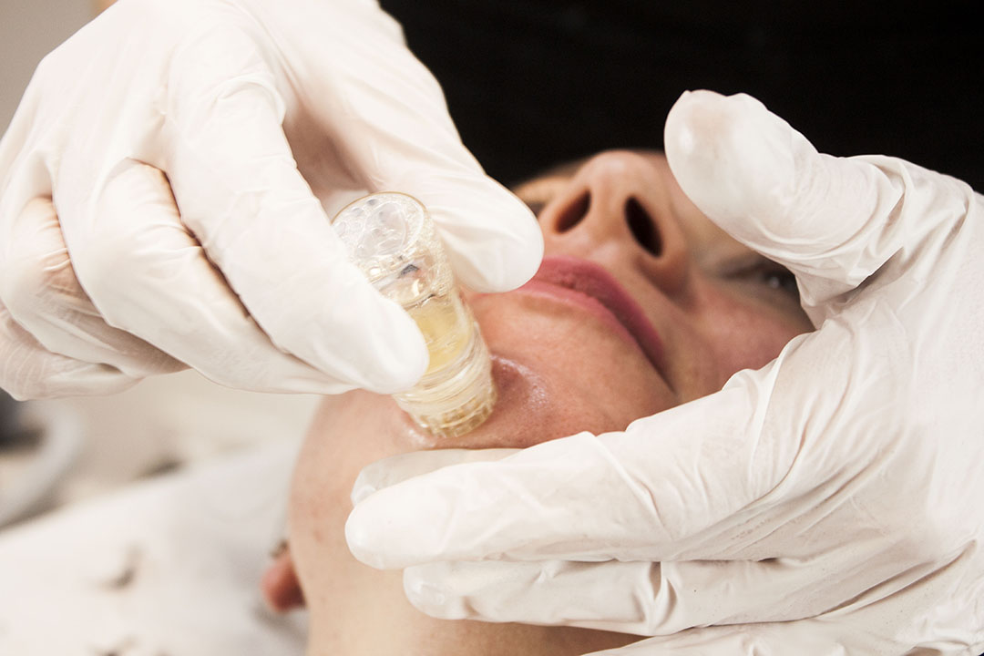 A woman receiving a Golden Glow Facial from Natural Face Aesthetics in Malmesbury, Wiltshire.