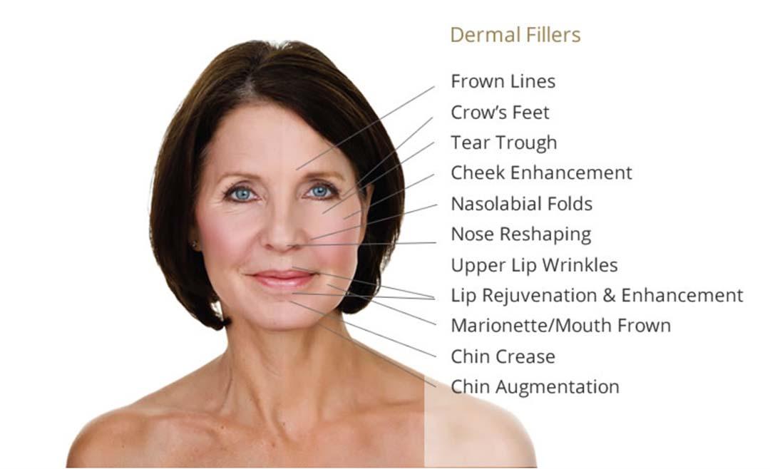 Dermal Fillers Malmesbury | Natural Face Aesthetics
